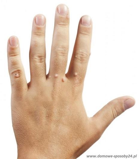 kurzajki na dłoni