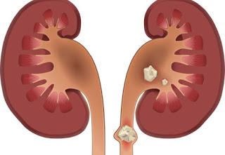 أهم 8 طرق طبيعية لإزالة حصوات الكلى Kidney Stones