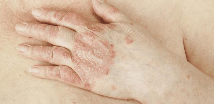 remedios para la psoriasis