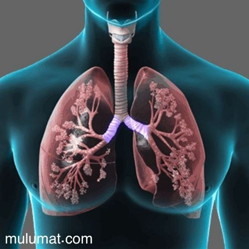 تليف الرئة الخطير ما هو وما هي أعراضه وأسبابه وكيفية علاجه