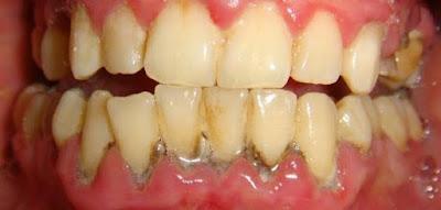 الجير وخطورته على الأسنان