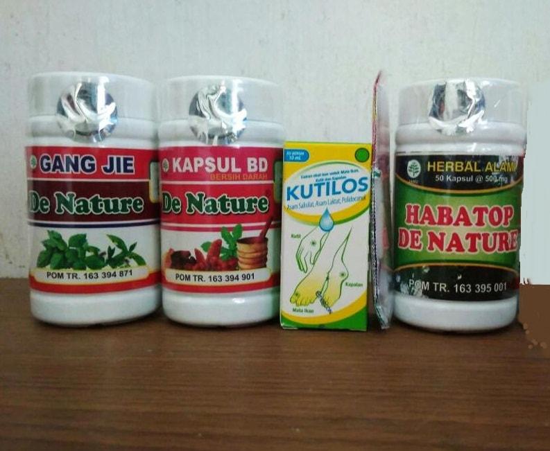 Obat Kondiloma untuk Ibu Hamul de Nature