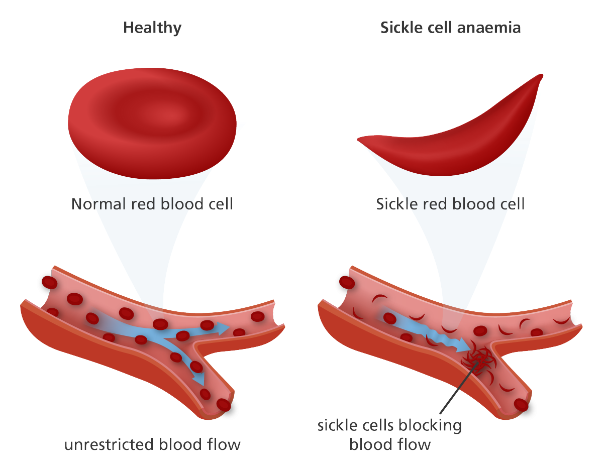 sickle-cell-anemia