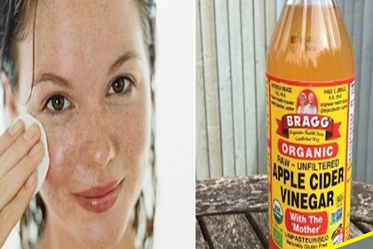 How To Get Rid Of Pimples With Apple Cider Vinegar