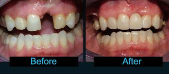 http://www.chennaidentalclinic.in/dental-implants.html