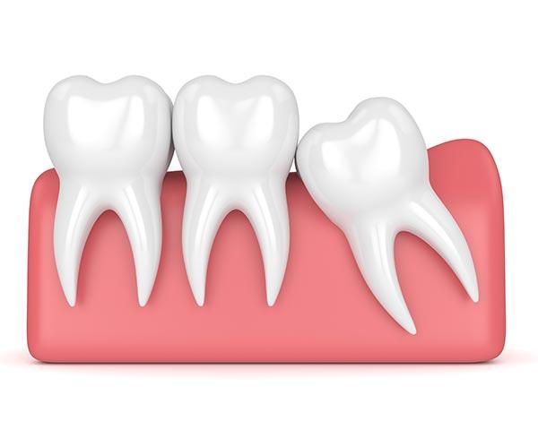 Wisdom Tooth Removal at Jamnagar