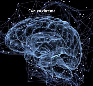 What is Schizophrenia? Whats are the symptoms of schizophrenic patient?