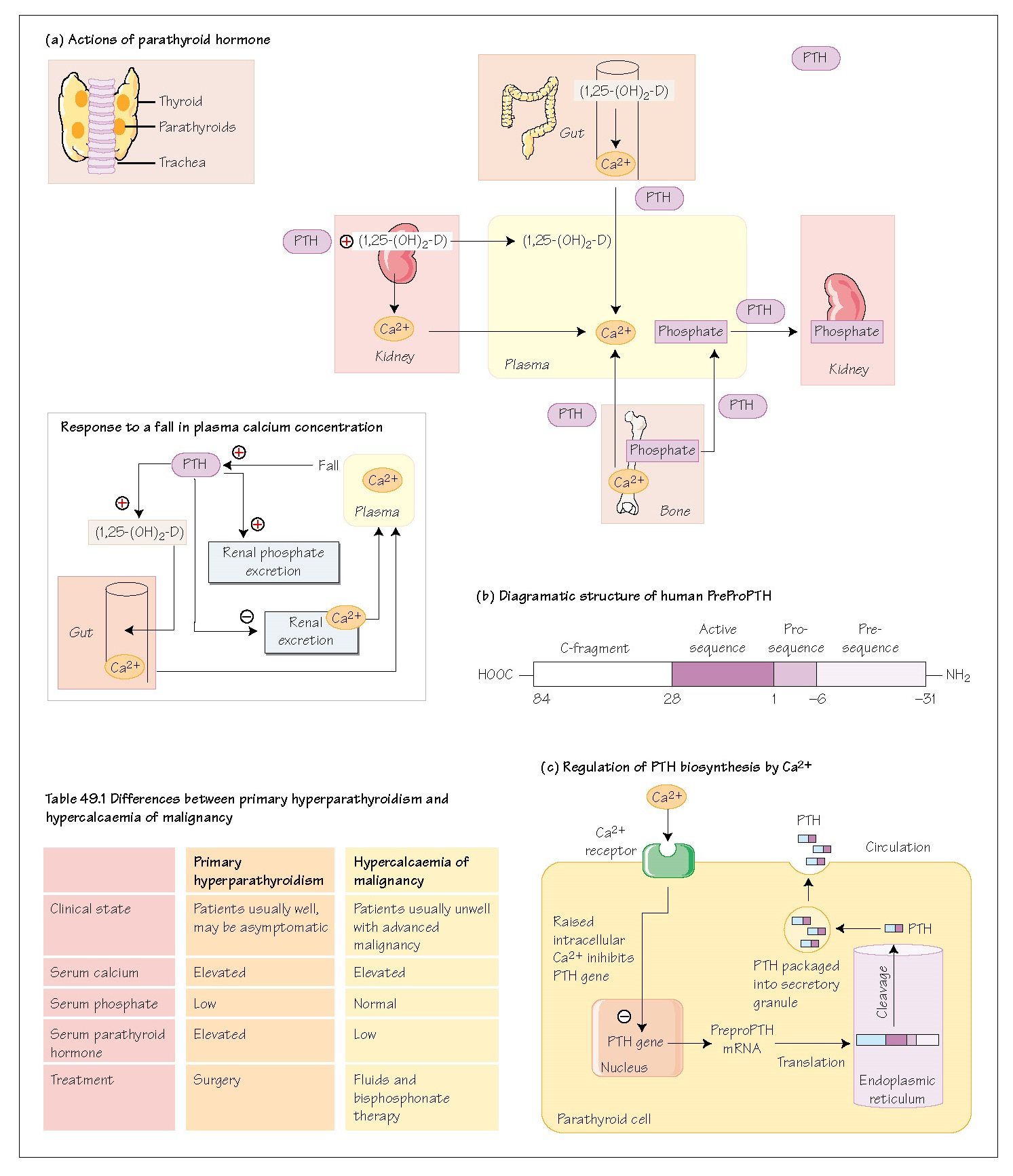 Parathyroid Hormone, parathyroid glands, Physiological actions of PTH, Gastrointestinal tract, Pathophysiology of PTH, Hyperparathyroidism, Hypoparathyroidism