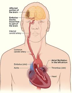 Penyabab Penyakit Stroke