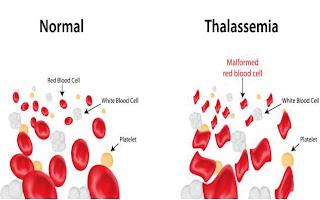 أنواع مرض الثلاسيميا