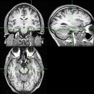 The parts of the brain studied in the spacing effect study with rats