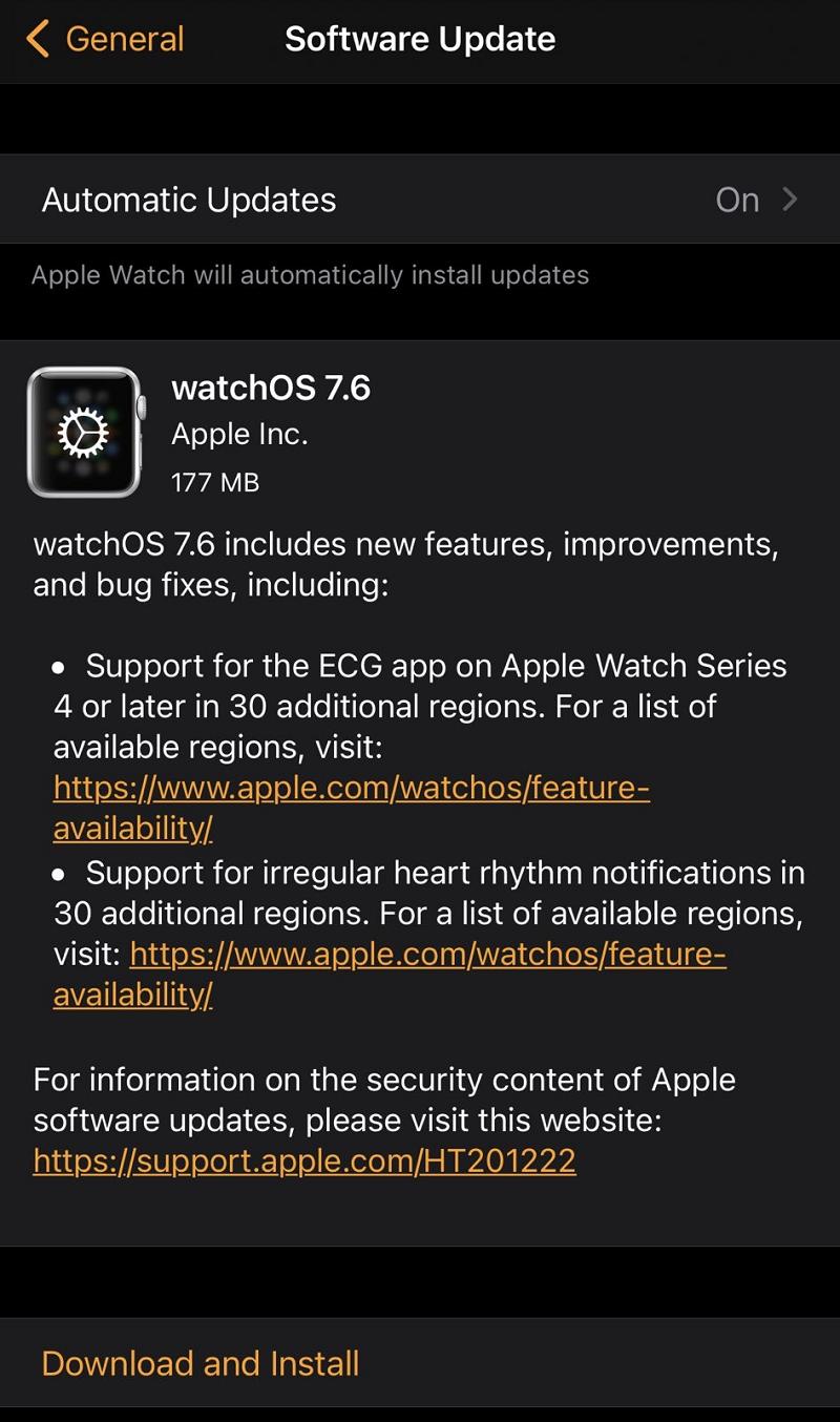 watchOS 7.6 Final Features
