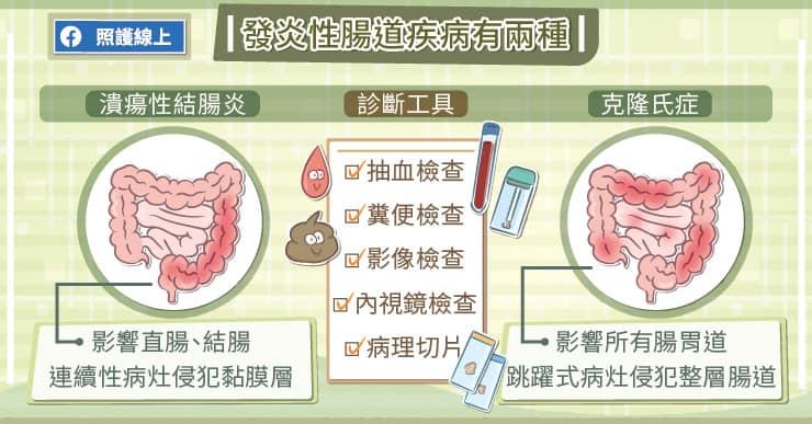 發炎性腸道疾病有兩種