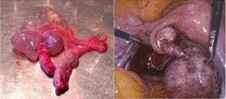 Kista Vagina