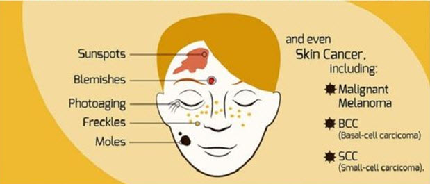 photo ageing, pigmentation, skin cancer