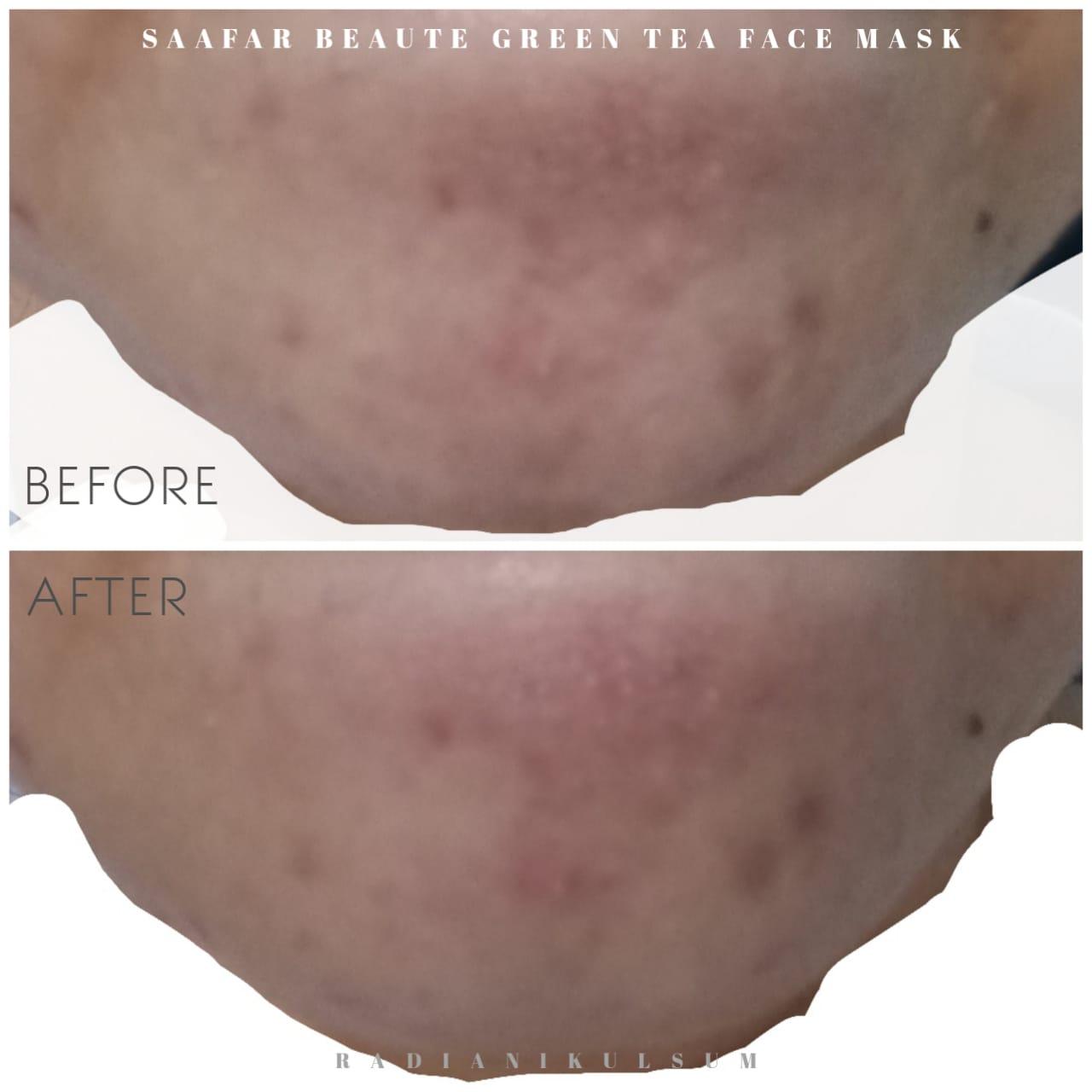before-after pemakaian Saafar Beaute Green Tea Face Mask di dagu