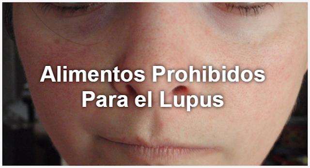 alimentos que debes evitar si tienes lupus