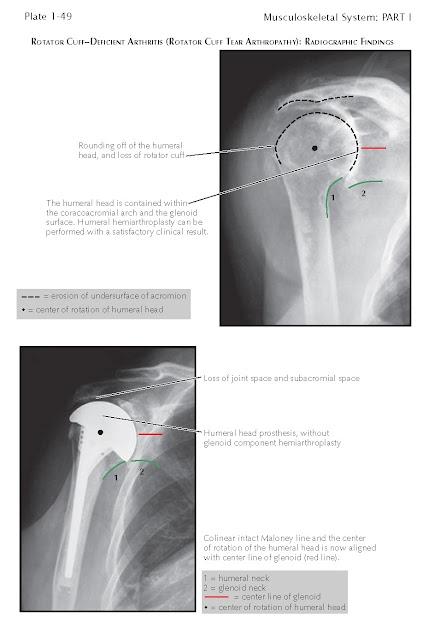 Rotator Cuff–Deficient Arthritis (Rotator Cuff Tear Arthropathy)