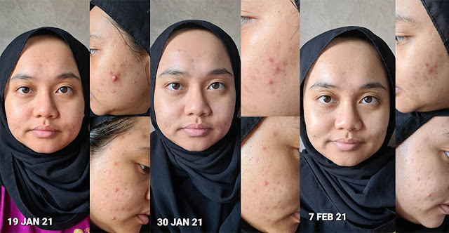 Before & After Using Cosrx Pure Fit Cica Cream