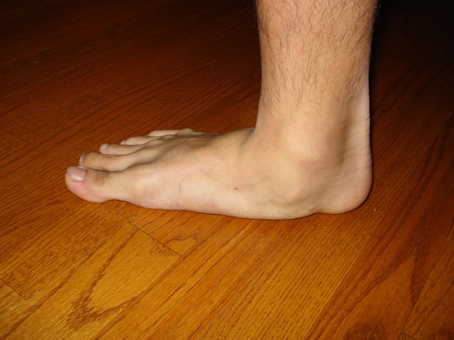 Pé Chato - Foto: Advanced Foot and Ankle Center