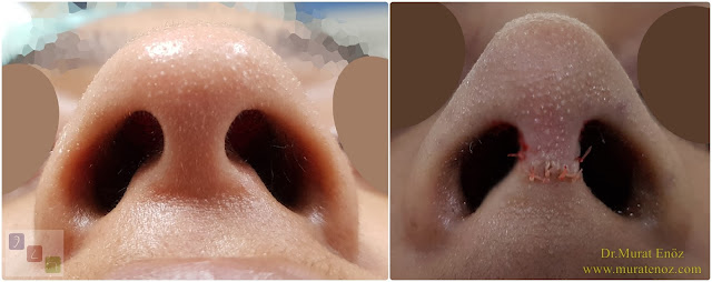 Ethnic Rhinoplasty Istanbul - Nose job in Istanbul - Nose surgery in Istanbul - Nose job in Turkey - Ethnic rhinoplasty Turkey - Ethnic rhinoplasty in Turkey - African American rhinoplasty - Ethnic expert nose job surgeon - Rhinoplasty surgeon in Istanbul - Black nose job - Rhinoplasty for ethnic nose - Rhinoplasty for African people - African American nose surgery - Rhinoplasty for African American Nose - Thick skin rhinoplasty - Rhinoplasty in istanbul - Dr.Murat Enoz