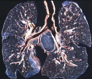 Occupational diseases - Pneumoconiosis