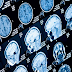 Neurological complications develop in hospitalised COVID-19 patients