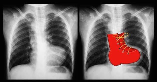 congenital heart disease thesis