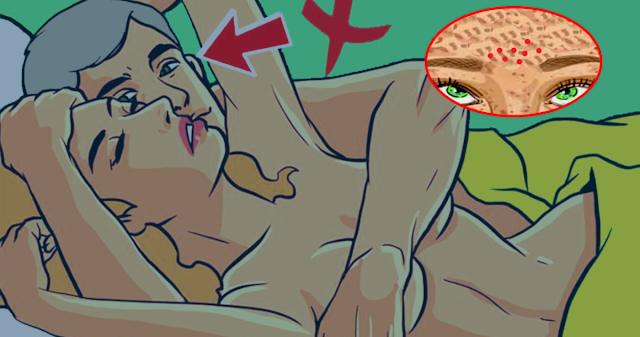 Сeкс и прыщи...Влияет ли недостаток или избыток секса на формирование прыщей?