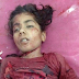 سیالکوٹ: بچی کے گلے پر پتنگ ڈور پھر جانے سے  بچی جاں بحق