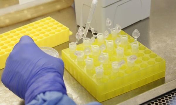Cientistas brasileiros avaliam eficácia de testes contra o novo coronavírus