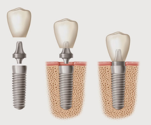 Dental Implant: Missing Tooth Replacement Solution