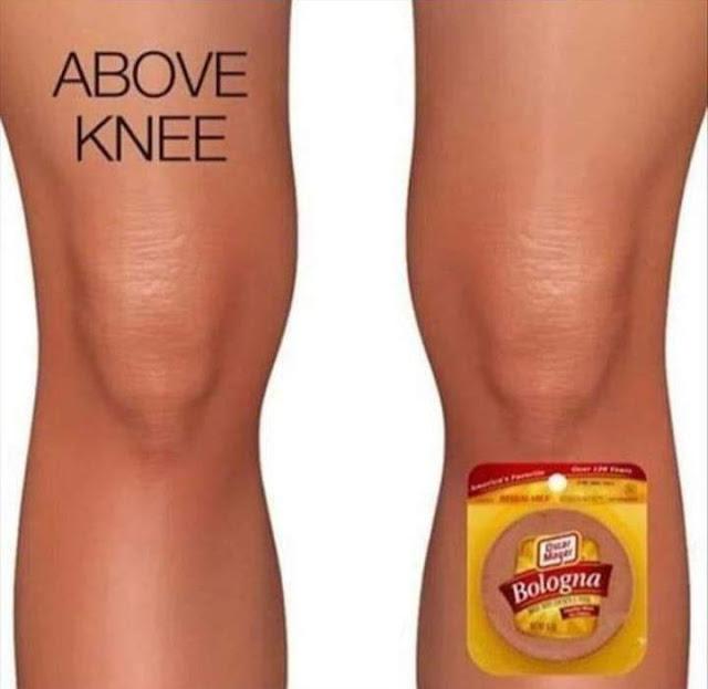 aboveknee-reddit.jpg