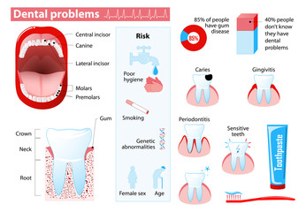 Are there ways to avoid dental problem