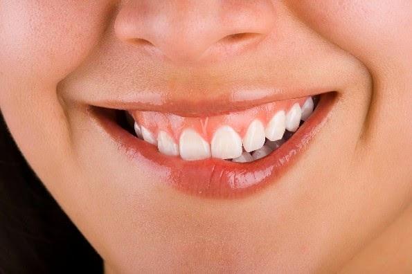remedio casero contra herpes bucal