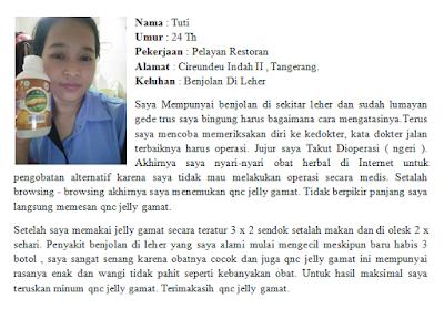 Cara Mengobati Fibroadenoma Mammae (FAM) Tanpa Operasi