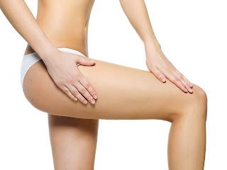 celulitis en piernas