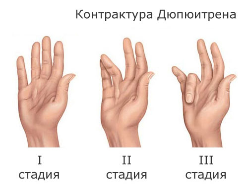 Контрактура Дюпюитрена лечение Харьков. Контрактура дюпюитрена Киев цена