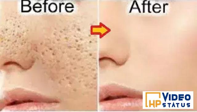 चेहरे के दाग धब्बे एवं गड्ढों को साफ कर देगा यह उपाय, एक बार जरूर आजमाएं - Beauty Tips
