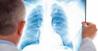 Akciğerde Leke Nedir Ne Anlama Gelir Neden Olur Nasıl Geçer?