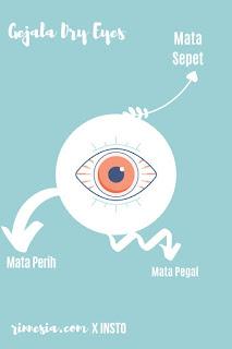 Gejala Mata Kering atau Dry Eyes yaitu Mata Perih, Mata Pegal, dan Mata Sepet