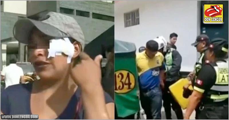Buhonera venezolana le cortó la cara a otra vendedora informal peruana con una navaja