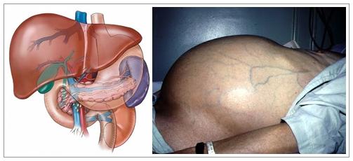 Pengobatan Herbal Atasi Liver Bengkak Secara Alami