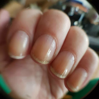 short nails, ridged nails, broken nails, chipped and peeling nails