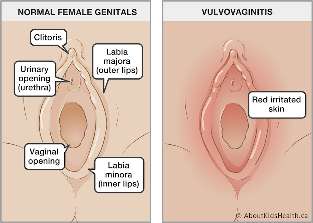 Vaginitis is common among women of reproductive age