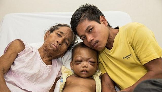 Целых два года этот малыш провел в ужасных муках, но Господь послал к нему хороших людей