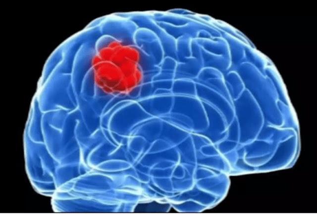 Symptoms Of Brain Cancer-healthinews