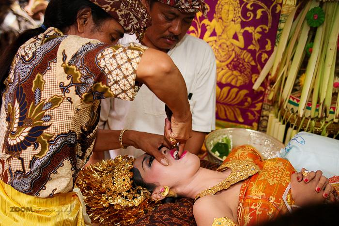 Corte de dente (Bali)