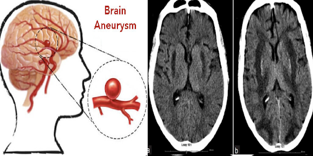 Brain Aneurysm: Facts. Causes , Risk And Symptoms