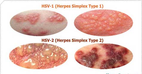 herpes 2 virus pictures